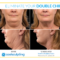 Coolsculpting1476455090